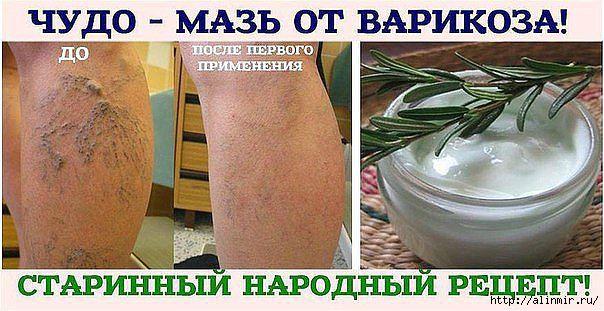 5283370_maz_ot_varikoza (604x311, 146Kb)
