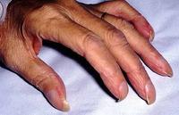 Полезно знать! Диагностика по ногтям.